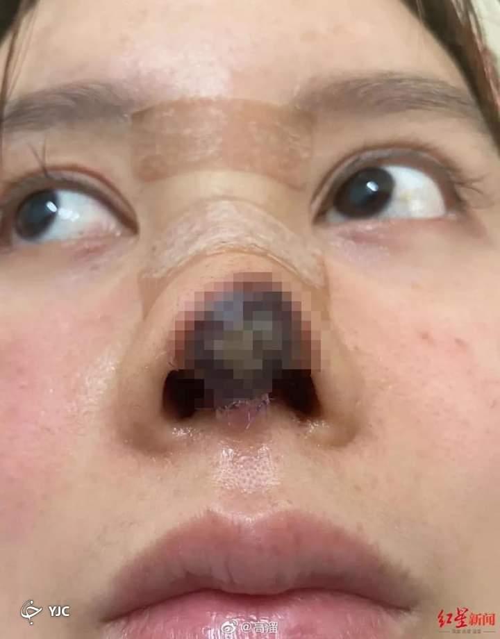 تصاویر شوکه کننده جراحی بینی بازیگر زن معروف چینی